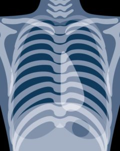 肋骨のレントゲン